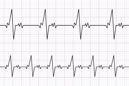 Heartbeats cardiogram. ECG heart line. Electrocardiogram paper background. Vector illustration.