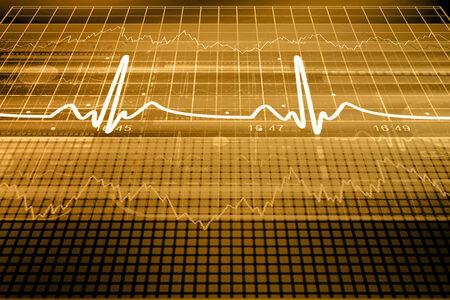 heart monitor: Heart beat monitor