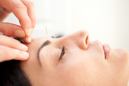 acupuncture treatment - facial rejuvination therapy - alternative medicine