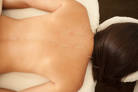 qi: acupuncture treatment - alternative health care Stock Photo
