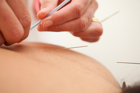 alternative health: acupuncture therapy - alternative health care