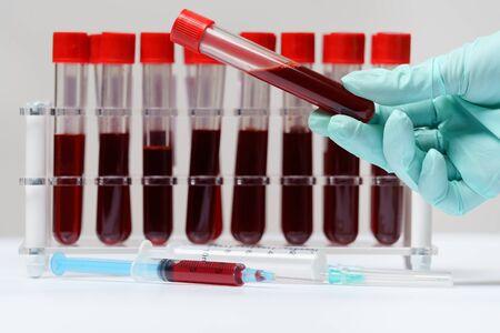 Rack of Tubes of blood sample for testing biological material