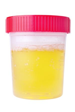 Una muestra de orina fresca en un recipiente médico aislado en blanco