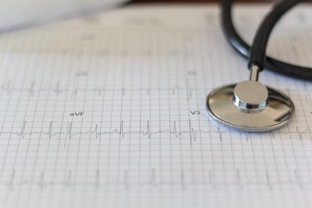 Estetoscopio médico y prueba de ECG (electrocardiograma)