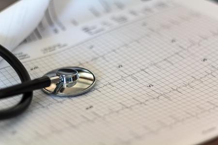 Estetoscopio médico en gráfico de examen de ECG Foto de archivo