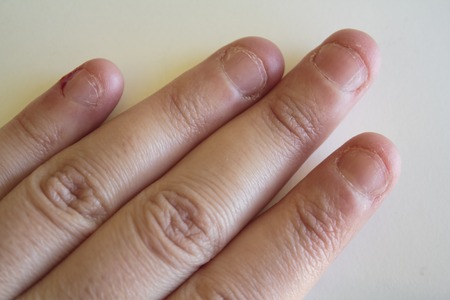 Woman hand with ugly nails by biting addiction