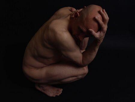male headache: Un calvo desnudo masculino frente de su cabeza y el cuello. M�s de negro.