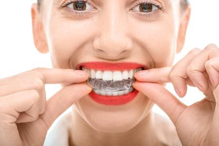 orthodontics: Retrato del primer de una mujer encantadora vistiendo entrenador de silicona de ortodoncia