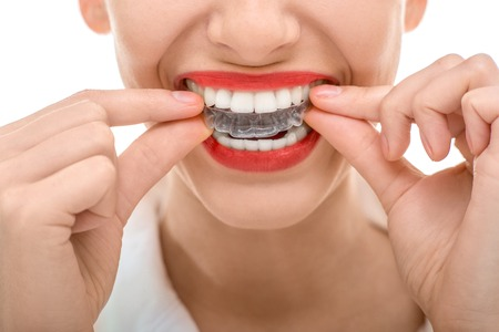 dentistry: Closeup portrait of charming woman wearing orthodontic silicone trainer