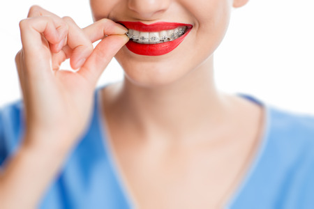 bracing: Womans smile with tooth braces