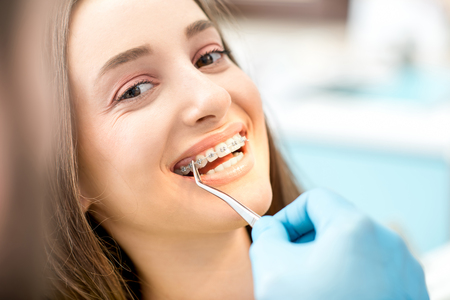 Womans smile with dental braces