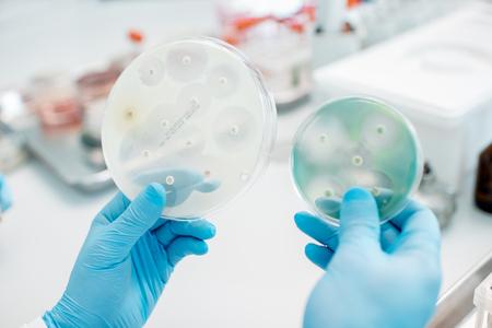 Analizando el efecto de los antibióticos sobre las bacterias en las placas de Petri en el laboratorio. Hacer pruebas bacteriológicas