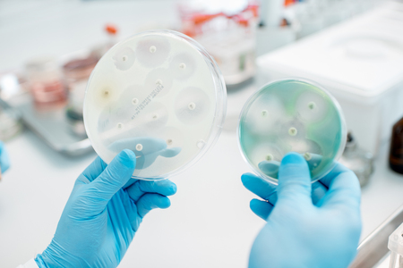 Looking on the effect of antibiotics on bacteria in Petri dishes at the laboratory. Making bacteriological tests Stock Photo