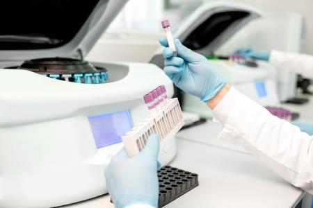 Assistant de laboratoire mettant des tubes à essai dans le support de la machine d'analyseur, vue rapprochée concentrée sur les tubes