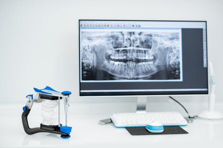 Lugar de trabajo con computadora y mandíbula artificial en el consultorio dental Foto de archivo