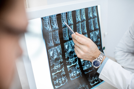 Homme pendant la consultation médicale avec un thérapeute senior regardant l'impression de tomographie au bureau