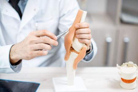 Primer plano del terapeuta que muestra el modelo de la articulación de la rodilla durante la consulta médica