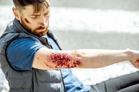 Homme blessé choqué regardant ses blessures, se réveillant sur le passage pour piétons après l'accident de la route avec une voiture