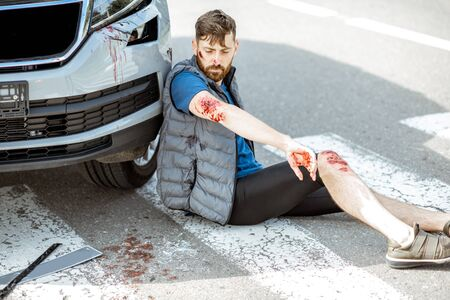 Injured man with bleeding wounds sitting on the pedestrian crossing near the car after the road accident
