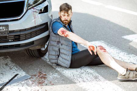 Verletzter Mann mit blutenden Wunden, der nach dem Verkehrsunfall auf dem Fußgängerüberweg in der Nähe des Autos sitzt Standard-Bild