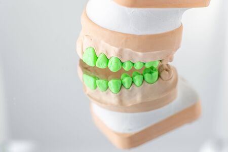 Close-up on plaster model of artificial jaw with teeth painted in green on the mirror background. Concept of aesthetic dentistry and implantation Stock fotó