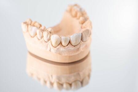 Close-up on plaster model of artificial jaw with veneers on the mirror background. Concept of aesthetic dentistry and design of veneers
