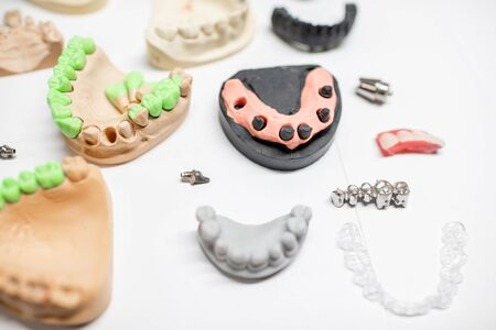 Various of artificial jaw models with dental implants and crowns on the white background. Concept of aesthetic dentistry and implantation technology Фото со стока - 136728995