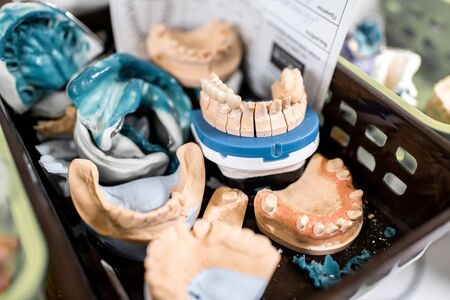 Various of artificial jaw models, impressions and dental implants on the shelves at the laboratory Imagens