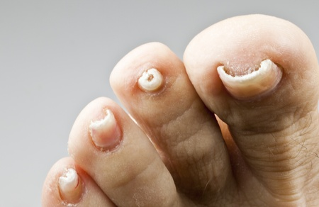 foot fungus: Nails with fungal disease