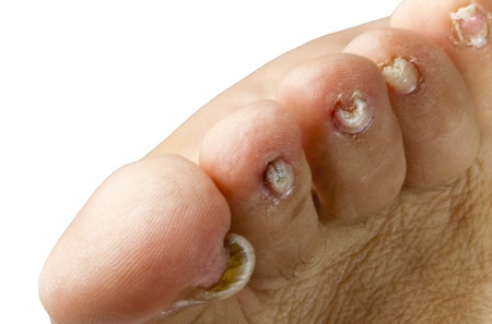 Nails with fungal disease photo