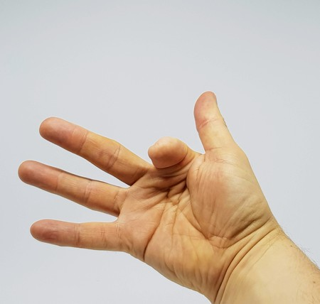 Adult white male with a partial amputation to the right index finger. Stock Photo