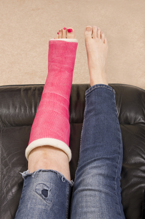 bone fracture: Lady with Fractured Leg