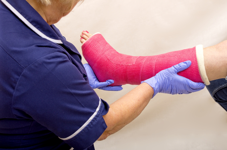 plaster leg cast: Ladies leg in Cast being treated by a Nurse