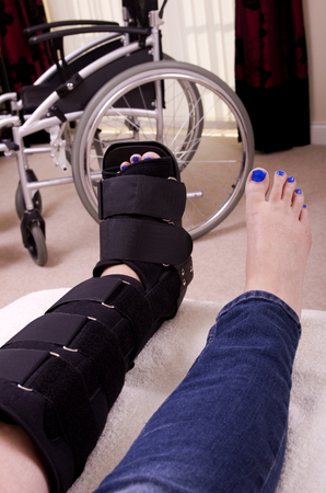 supported: A lady with a fractured leg sat on a chair  with her leg supported in an orthopaedic boot, showing only her legs with a wheel chair in the background. Stock Photo