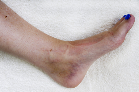 scars: Ladies ankle after operation to repair trimalleolar fracture, plate scars and rods inserted into leg