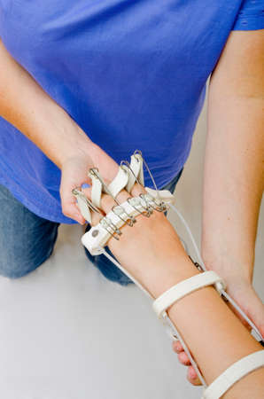 splint: A teenage girl, wearing a flexing splint on her hand receiving physiotherapy.