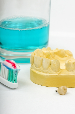Image of a dental impression and a crown implant ready for fitting. An impression is taken of the patient's mouth, so a crown can be manufactured to fit the gap.  Shown here with a toothbrush, tooth paste and mouthwash, to promote good dental hygiene.