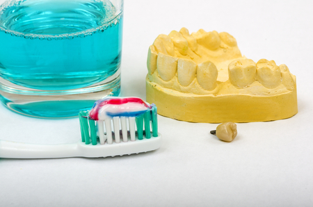 Image of a dental impression and a crown implant ready for fitting. An impression is taken of the patient's mouth, so a crown can be manufactured to fit the gap.  Shown here with a toothbrush, tooth paste and mouthwash, to promote good dental hygiene. Stock Photo