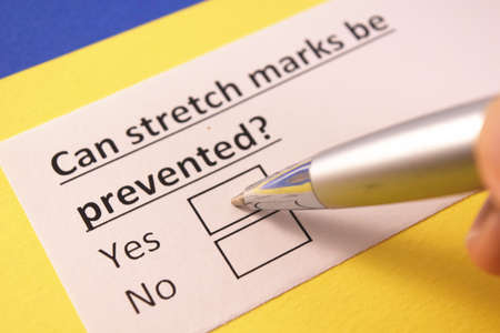 Can stretch marks be prevented? Yes or no?