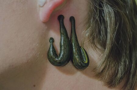 leech: Terapia Leech Foto de archivo