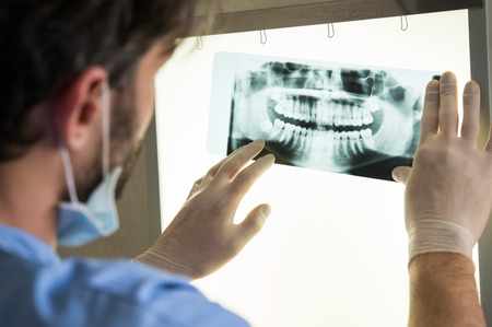 Closeup of dentist looking at dental x-ray plate 스톡 콘텐츠