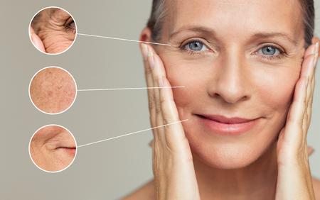 Nahaufnahmen von Falten und Hautunvollkommenheiten im Gesicht einer älteren Frau. Porträt der schönen älteren Frau, die ihre perfekte Haut nach einer Schönheitsbehandlung berührt. Alterungsprozesskonzept.