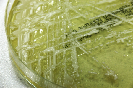 fight disease: macro photographed bacteria in petri dishes in the laboratory environment