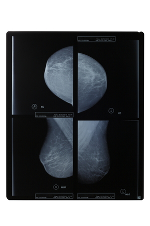 mammography: View the X-rays from different angles were examples of mammography