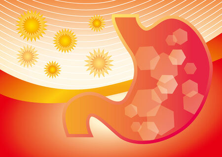 gastrointestinal: Illustration of the stomachache