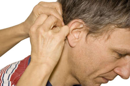 acupuncture treatment - female doctor applying acupuncture needles behind a mans ear photo