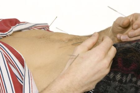 acupuncture treatment - man lying on back receiving acupuncture photo