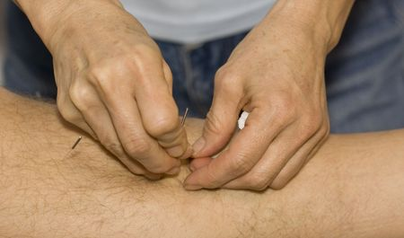 Hands applying needles to skin in acupuncture therapy photo
