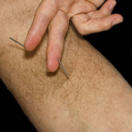 Man getting acupuncture treatment on leg - close-up Stock Photo - 3061976