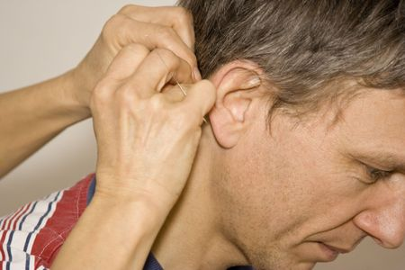 acupuncture treatment - female doctor applying acupuncture needles behind a man's ear Stock Photo - 3213544